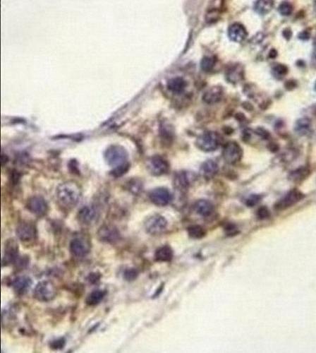 Immunohistochemistry (Formalin/PFA-fixed paraffin-embedded sections) - Anti-PNLDC1 antibody - Carboxyterminal end (ab170282)