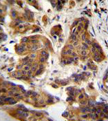 Immunohistochemistry (Formalin/PFA-fixed paraffin-embedded sections) - Anti-C4orf21 antibody - N-terminal (ab170344)