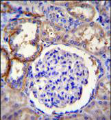 Immunohistochemistry (Formalin/PFA-fixed paraffin-embedded sections) - Anti-FAM96A antibody - C-terminal (ab170352)