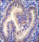 Immunohistochemistry (Formalin/PFA-fixed paraffin-embedded sections) - Anti-CCDC54 antibody (ab170357)