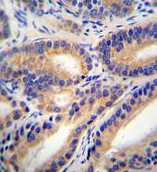 Immunohistochemistry (Formalin/PFA-fixed paraffin-embedded sections) - Anti-DHI1L antibody - C-terminal (ab170372)