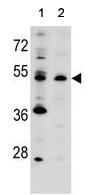 Western blot - Anti-PCMF antibody - C-terminal (ab170382)