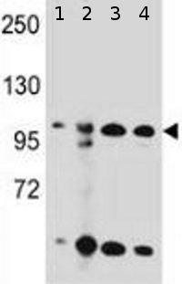 Western blot - Anti-KSR2 antibody (ab170442)