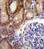 Immunohistochemistry (Formalin/PFA-fixed paraffin-embedded sections) - Anti-CLC7 antibody - C-terminal (ab170502)