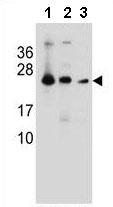 Western blot - Anti-MESDC2 antibody - C-terminal (ab170504)