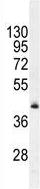 Western blot - Anti-FAM82B antibody - N-terminal (ab170509)