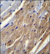 Immunohistochemistry (Formalin/PFA-fixed paraffin-embedded sections) - Anti-FGF16 antibody - Aminoterminal end (ab170515)
