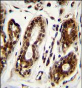 Immunohistochemistry (Formalin/PFA-fixed paraffin-embedded sections) - Anti-Nucleolin antibody (ab170518)