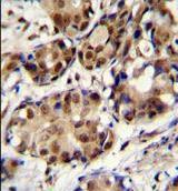 Immunohistochemistry (Formalin/PFA-fixed paraffin-embedded sections) - Anti-PELP1 antibody (ab170525)