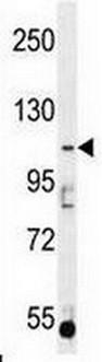 Western blot - Anti-AGBL5 antibody (ab170541)