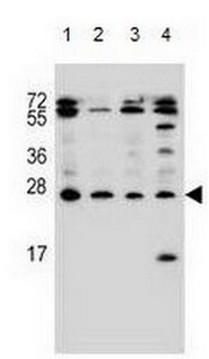 Western blot - Anti-Endothelin 1 antibody - C-terminal (ab170544)