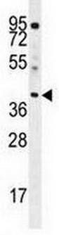 Western blot - Anti-ELMOD2 antibody - C-terminal (ab170551)