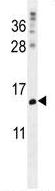 Western blot - Anti-MORN5 antibody - C-terminal (ab170600)