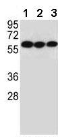 Western blot - Anti-CHRNA10 antibody (ab170602)