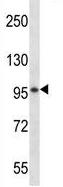 Western blot - Anti-SPON1 antibody - N-terminal (ab170655)