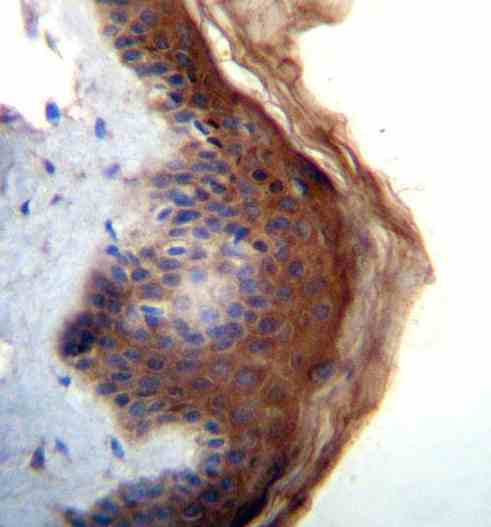 Immunohistochemistry (Formalin/PFA-fixed paraffin-embedded sections) - Anti-IL36RN antibody - N-terminal (ab170671)