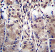 Immunohistochemistry (Formalin/PFA-fixed paraffin-embedded sections) - Anti-MDM1 antibody - C-terminal (ab170704)