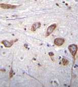 Immunohistochemistry (Formalin/PFA-fixed paraffin-embedded sections) - Anti-PLCL2 antibody - C-terminal (ab170725)