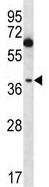 Western blot - Anti-NFKBIL1 antibody - C-terminal (ab170749)