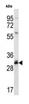 Western blot - Anti-DULLARD antibody (ab170765)