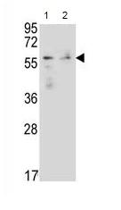 Western blot - Anti-FOXN1 antibody (ab170793)