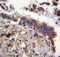 Immunohistochemistry (Formalin/PFA-fixed paraffin-embedded sections) - Anti-Tau tubulin kinase 2 antibody - N-terminal (ab170799)