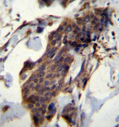 Immunohistochemistry (Formalin/PFA-fixed paraffin-embedded sections) - Anti-CCDC13 antibody (ab170849)