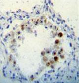 Immunohistochemistry (Formalin/PFA-fixed paraffin-embedded sections) - Anti-p15 INK4b antibody (ab170851)