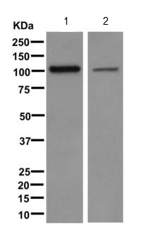 Western blot - Anti-ERC2 antibody [EPR9419] (ab170862)