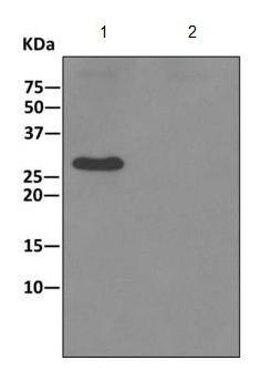 Immunoprecipitation - Anti-TPK1 [EPR10918] antibody (ab170863)