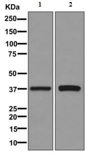 Western blot - Anti-N myc interactor [EPR11066] antibody (ab170870)
