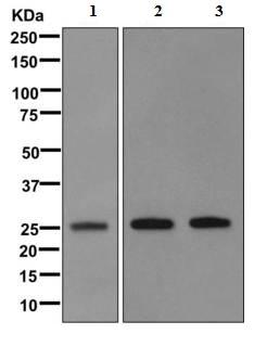 Western blot - Anti-Human Kappa Chain antibody [EPR11633] (ab170879)