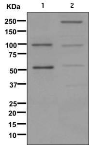 Western blot - Anti-C4a [EPR11241] antibody (ab170917)
