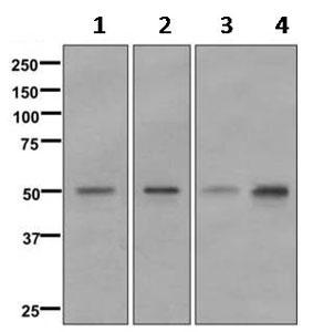 Western blot - Anti-FOXA1 [EPR10881] antibody (ab170933)