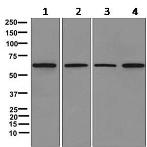 Western blot - Anti-SLC23A3 [EPR11800] antibody (ab170938)