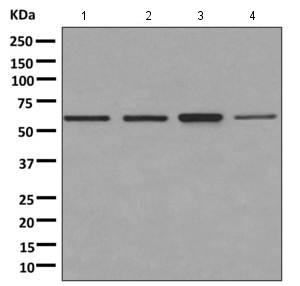 Western blot - Anti-PNK [EPR11934(B)] antibody (ab170954)