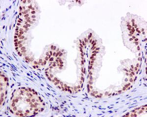 Immunohistochemistry (Formalin/PFA-fixed paraffin-embedded sections) - Anti-PNK [EPR11934(B)] antibody (ab170954)