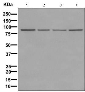 Western blot - Anti-KLHL1 [EPR11506] antibody (ab170961)