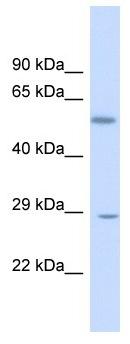 Western blot - Anti-KLF9 antibody - N-terminal (ab170980)