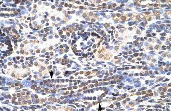 Immunohistochemistry (Formalin/PFA-fixed paraffin-embedded sections) - Anti-KLF9 antibody - N-terminal (ab170980)