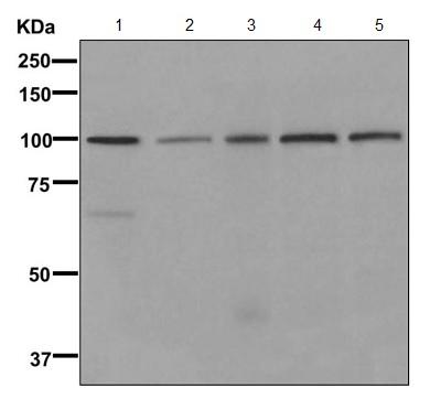 Western blot - Anti-KCNH6 [EPR11840] antibody (ab170994)