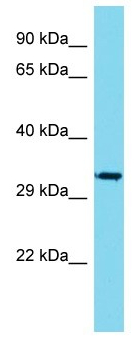 Western blot - Anti-VGLL1 antibody - C-terminal (ab171019)