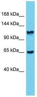 Western blot - Anti-MPRIP antibody (ab171032)
