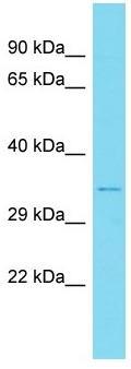 Western blot - Anti-CCNB1IP1 antibody - Aminoterminal end (ab171035)
