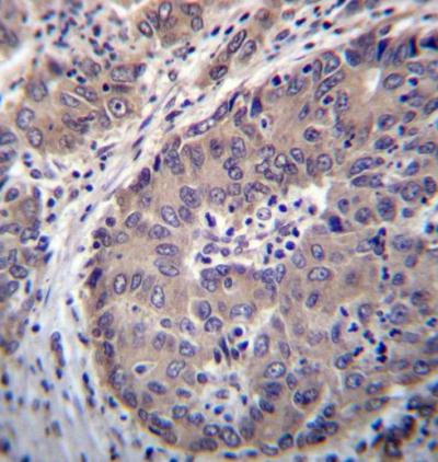 Immunohistochemistry (Formalin/PFA-fixed paraffin-embedded sections) - Anti-PNLIPRP3 antibody - Aminoterminal end (ab171194)