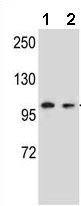 Western blot - Anti-GRIP2 antibody (ab171411)