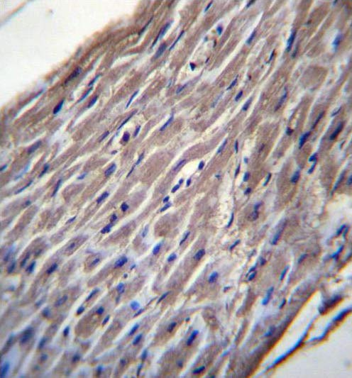 Immunohistochemistry (Formalin/PFA-fixed paraffin-embedded sections) - Anti-BVES antibody (ab171550)