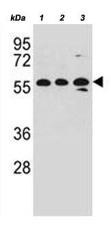 Western blot - Anti-RNF87 antibody - N-terminal (ab171613)