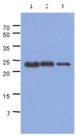 Western blot - Anti-TNNI1 [AT36E7] antibody (ab171650)