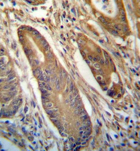 Immunohistochemistry (Formalin/PFA-fixed paraffin-embedded sections) - Anti-NETO2 antibody - N-terminal (ab171651)